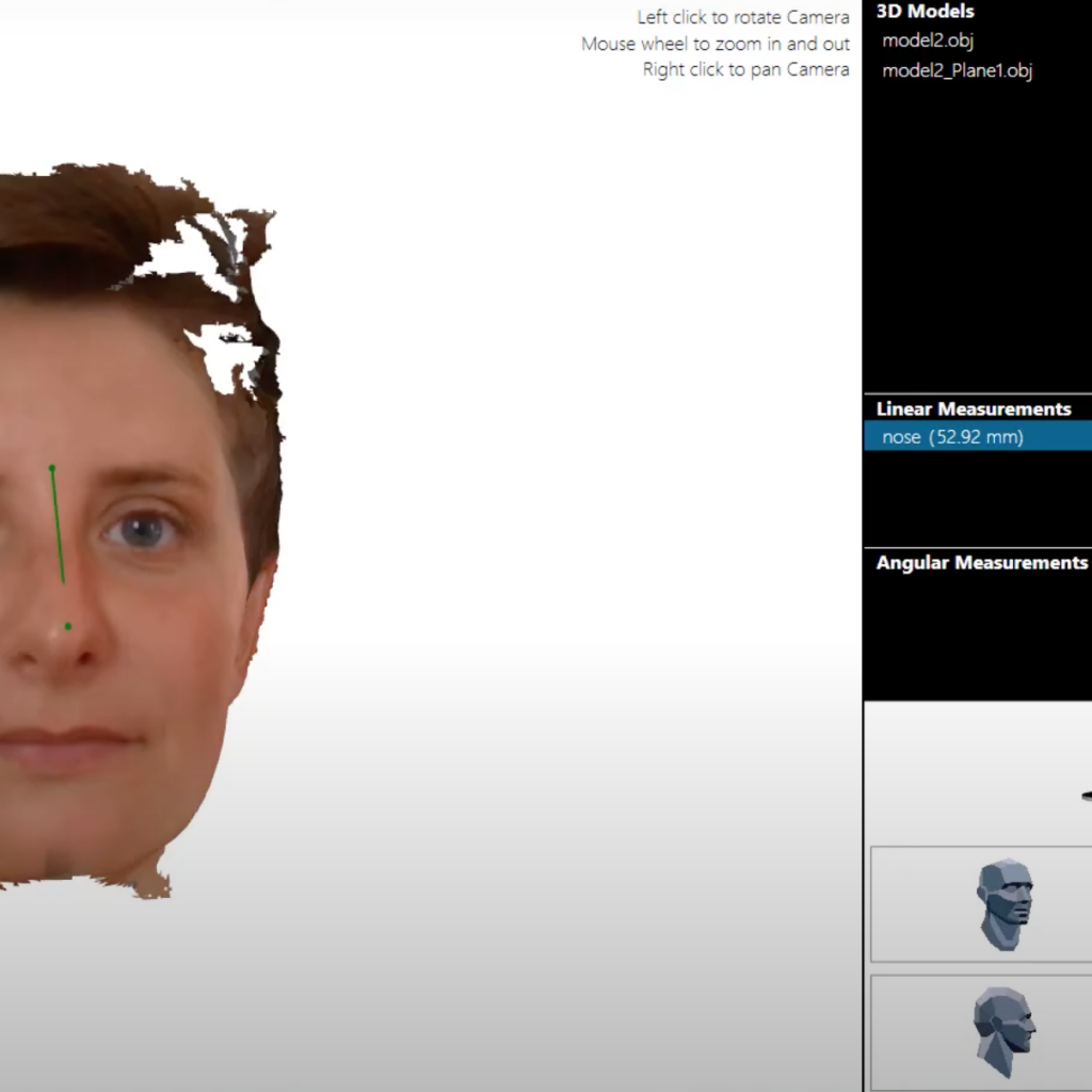 Another screenshot from ObiScanner Otho Module. The dentist is taking nose's measurement on the patience's face 3d model