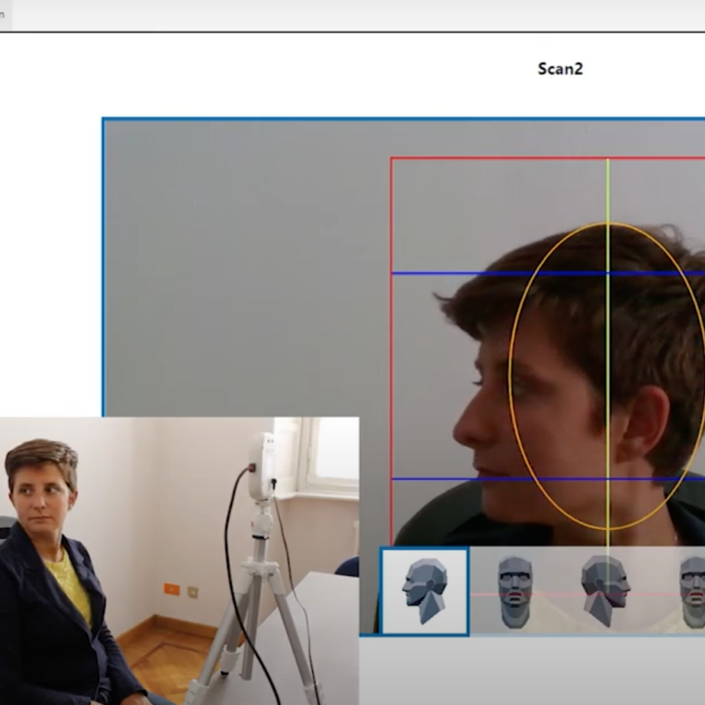 ObiScanner software offers on PC a grid to scan the patient's face is the right position. Here is how the dentist see the patient's face in this grid., to check the position while the patient turns her head for taking the face scan