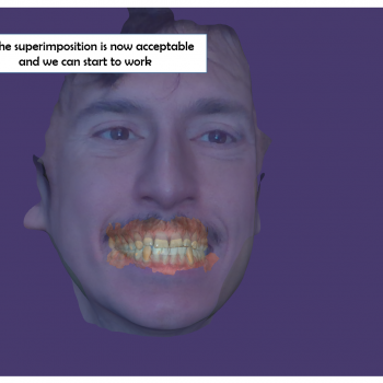 ObiScanner 3D model of the patient face is superimposed with an intra oral scan, for a complete face's 3d model